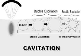 cavitation diagram woman