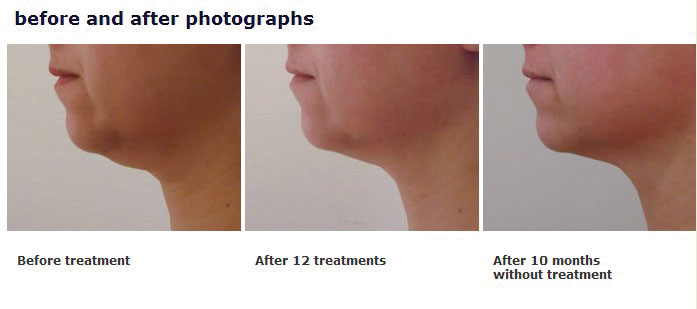 3D-lipo in Woking Surrey